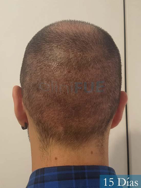 Sebastian 24 Barcelona trasplante turquia 15 dias 5