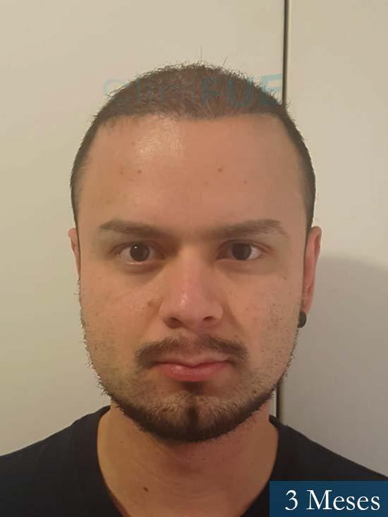 Sebastian 24 Barcelona trasplante turquia 3 meses