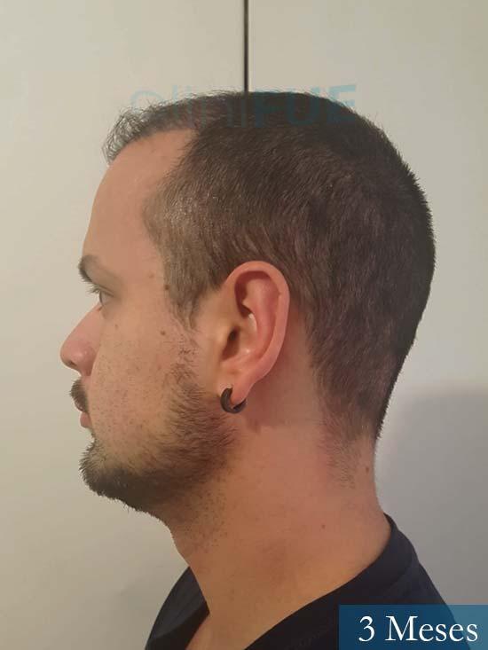 Sebastian 24 Barcelona trasplante turquia 3 meses 3