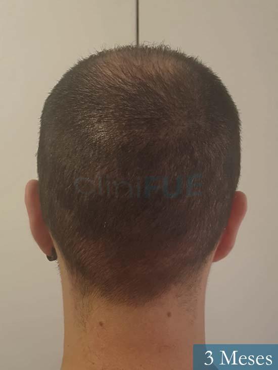 Sebastian 24 Barcelona trasplante turquia 3 meses 5