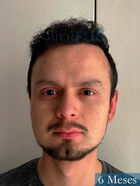 Sebastian 24 Barcelona trasplante turquia 6 meses 1