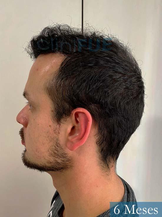 Sebastian 24 Barcelona trasplante turquia 6 meses 4