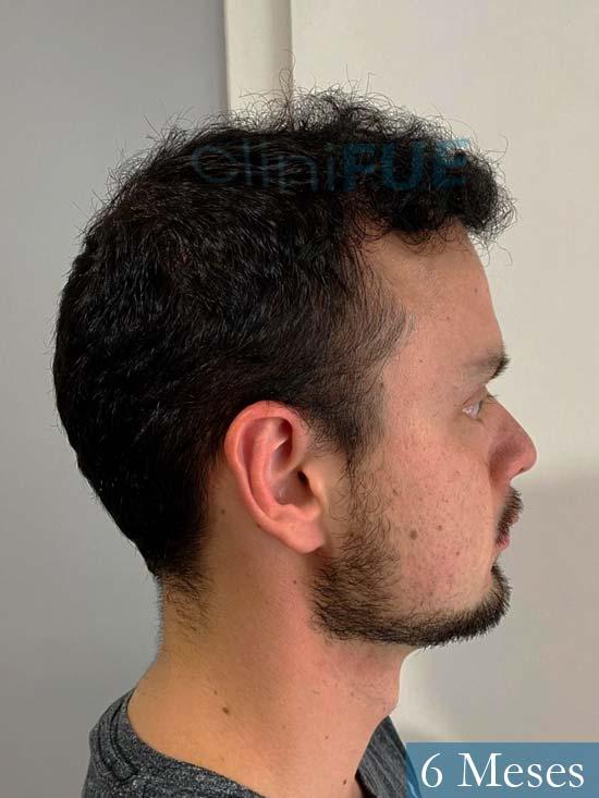 Sebastian 24 Barcelona trasplante turquia 6 meses 3
