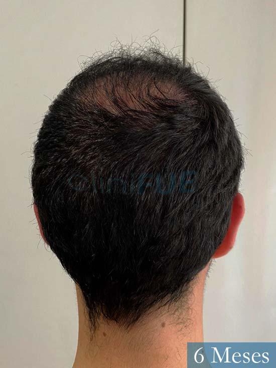 Sebastian 24 Barcelona trasplante turquia 6 meses 5