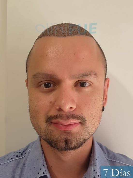 Sebastian 24 Barcelona trasplante turquia 7 dias