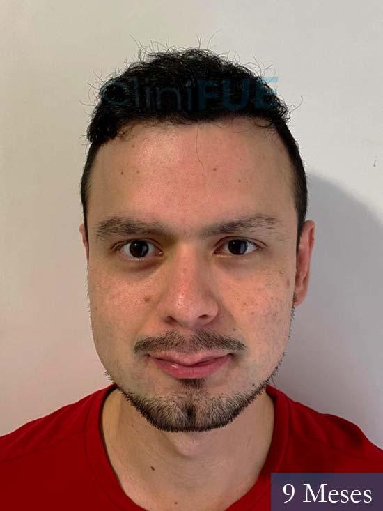 Sebastian 24 Barcelona trasplante turquia 9 meses 1
