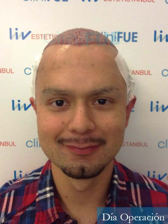 Sebastian 24 Barcelona trasplante turquia dia operacion