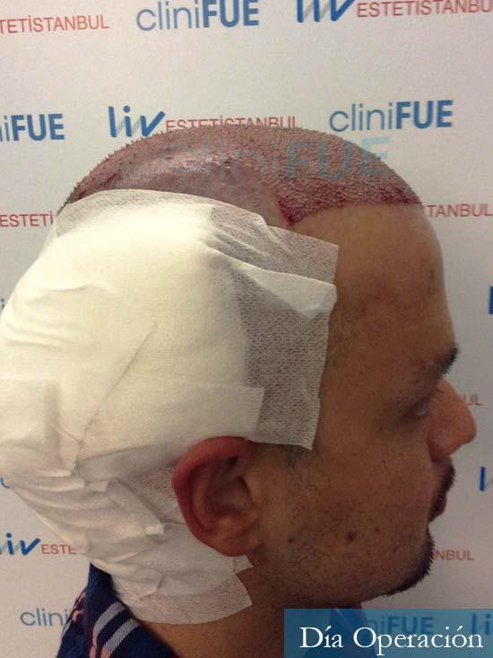 Sebastian 24 Barcelona trasplante turquia dia operacion 3