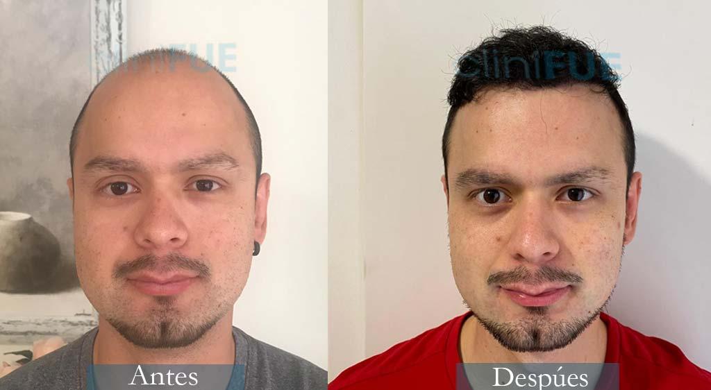 Injerto capilar de Sebastian 24 Años de Madrid con cliniFUE