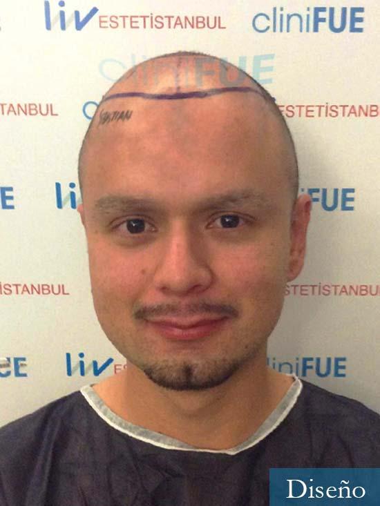 Sebastian-24-Barcelona-trasplante-turquia-dia operacion-diseno