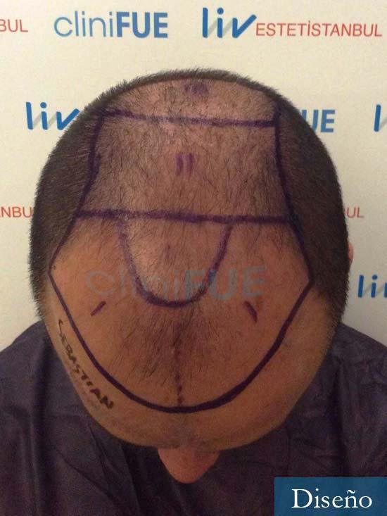 Sebastian-24-Barcelona-trasplante-turquia-dia operacion-diseno 2