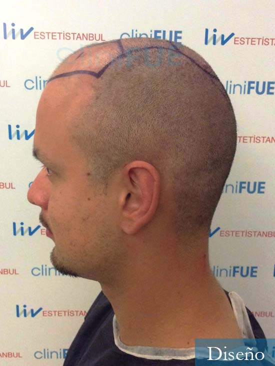 Sebastian-24-Barcelona-trasplante-turquia-dia operacion-diseno 4