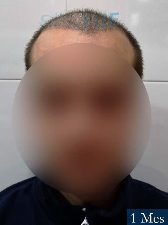 Jairo trasplante capilar turquia 1 mes 1