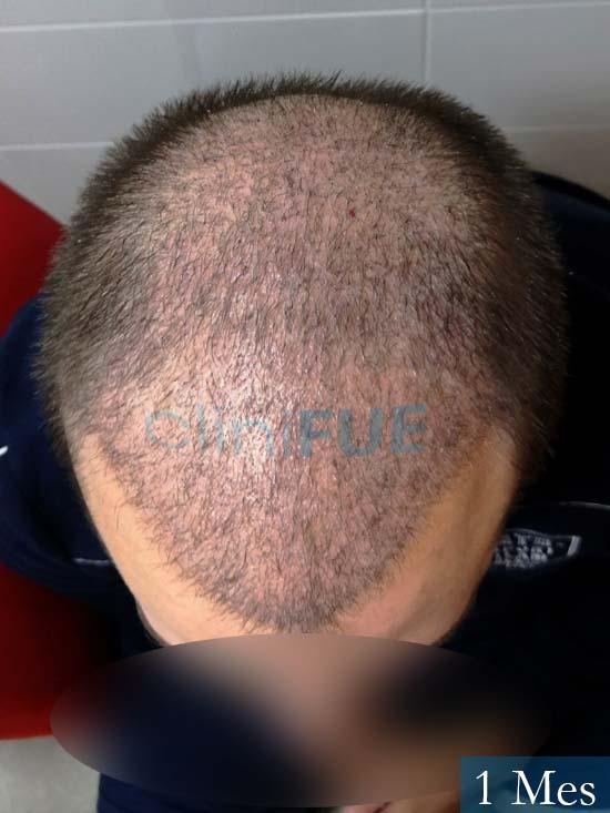 Jairo trasplante capilar turquia 1 mes 2