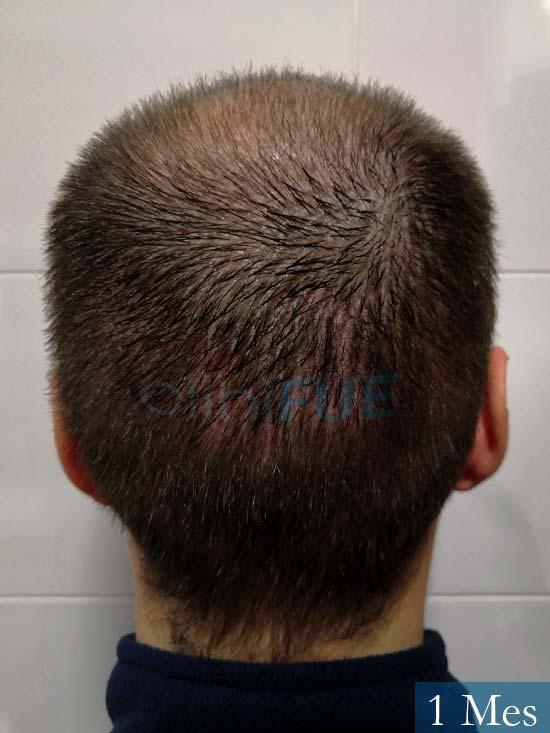 Jairo trasplante capilar turquia 1 mes 5