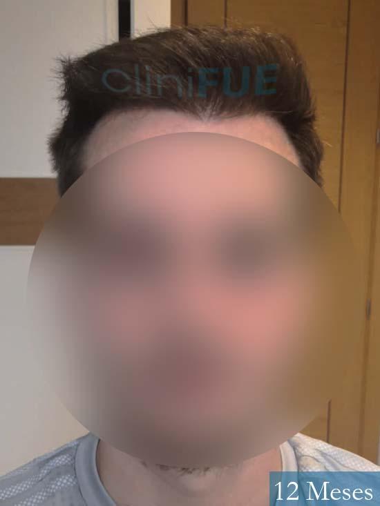 Jairo trasplante capilar turquia 12 meses 1