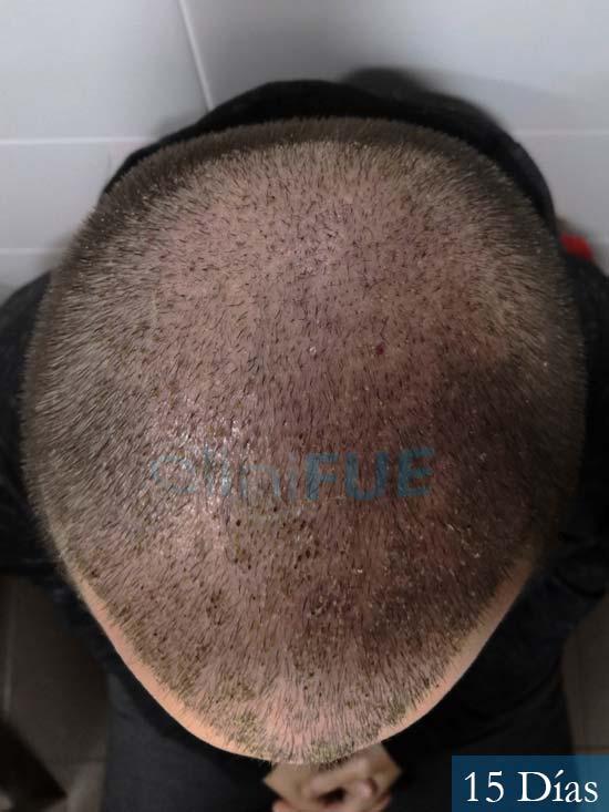 Jairo trasplante capilar turquia 15 dias 6