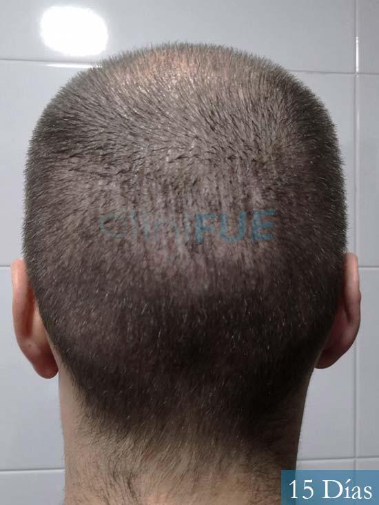 Jairo trasplante capilar turquia 15 dias 5