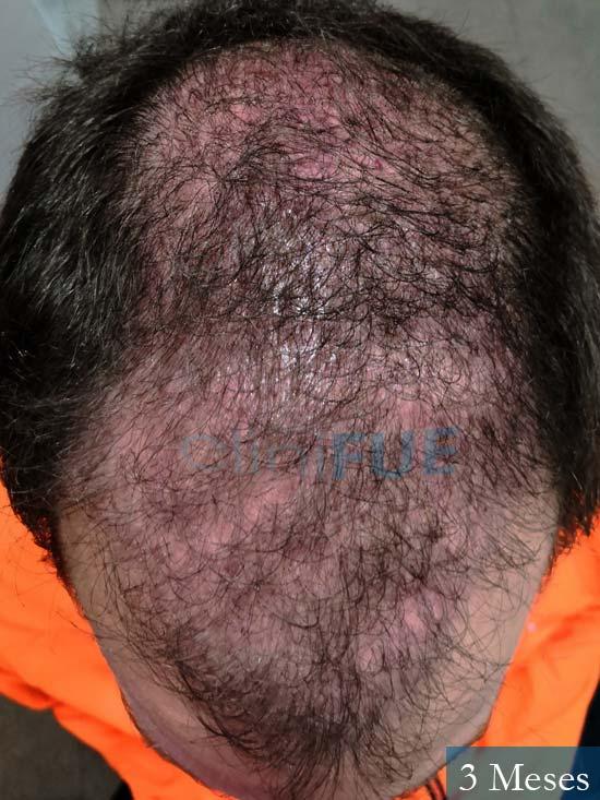 Jairo trasplante capilar turquia 3 meses 2