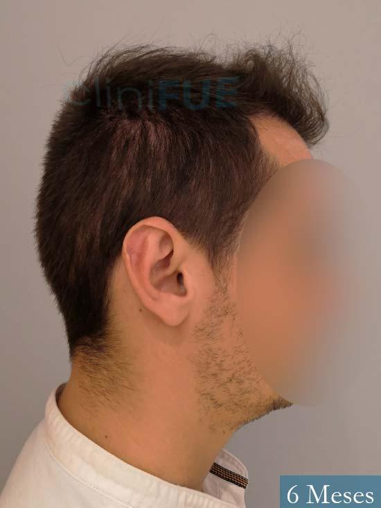 Jairo trasplante capilar turquia 6 meses 3