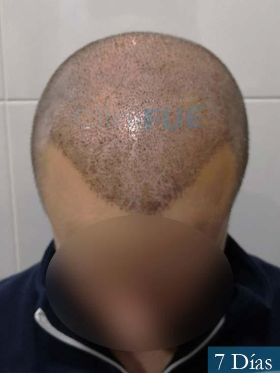 Jairo trasplante capilar turquia 7 dias 2