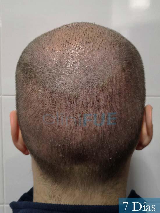 Jairo trasplante capilar turquia 7 dias 5