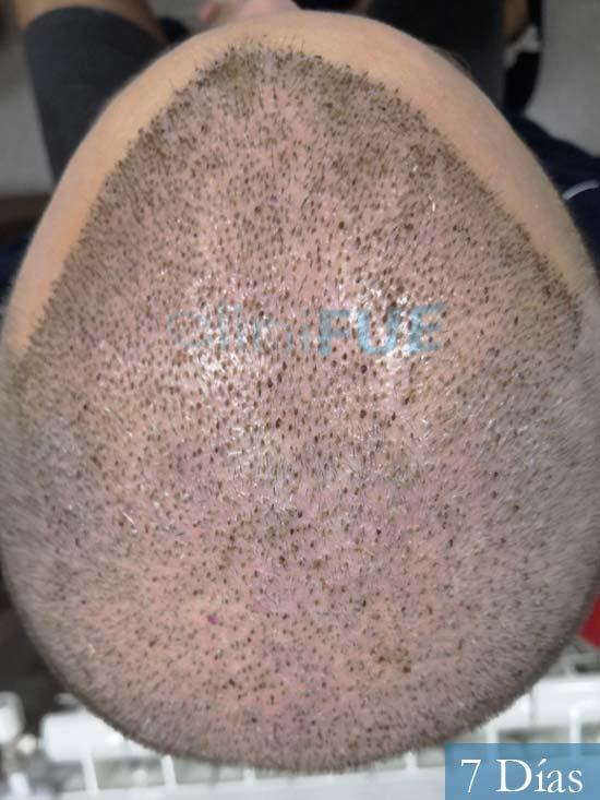 Jairo trasplante capilar turquia 7 dias 6