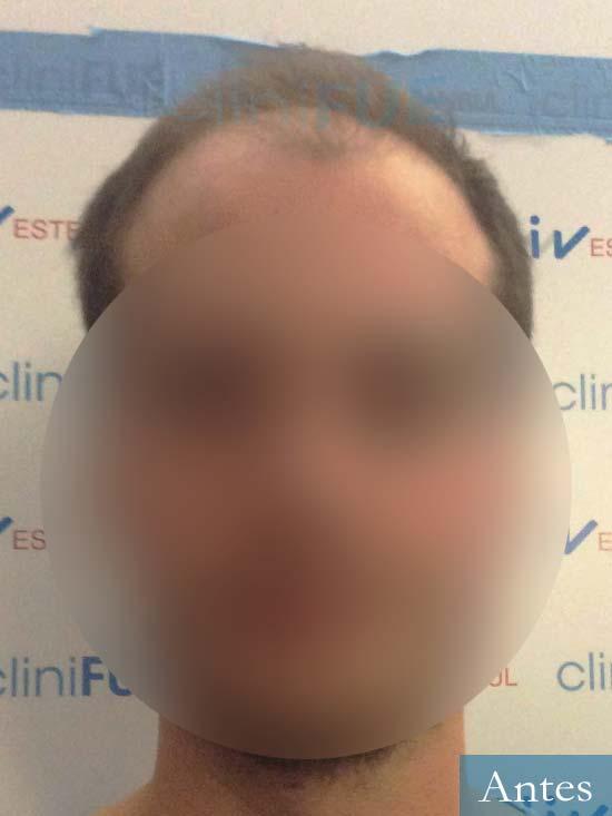 Jairo trasplante capilar turquia Dia operacion antes