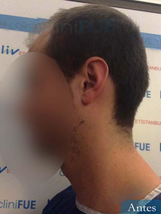 Jairo trasplante capilar turquia Dia operacion antes 3