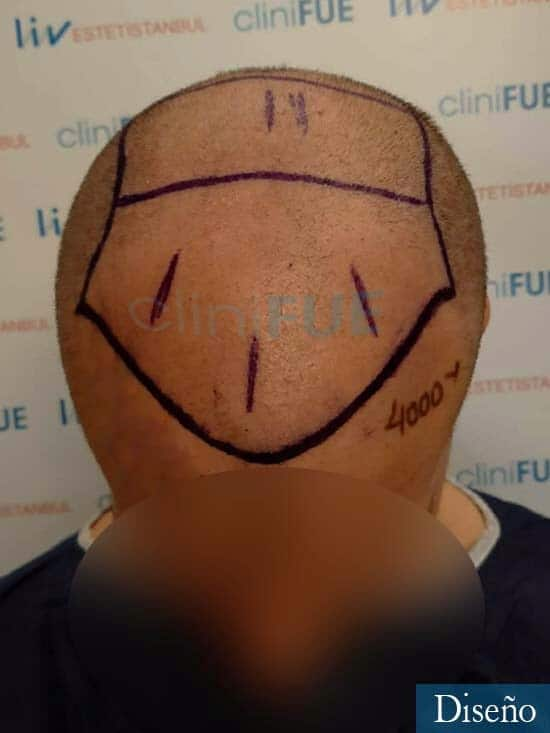 Jairo trasplante capilar turquia Dia operacion diseno 5