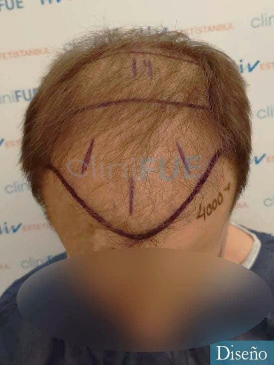 Jairo trasplante capilar turquia Dia operacion diseno 2