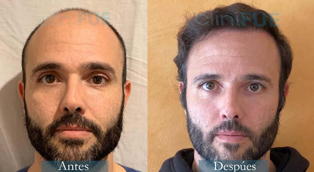 Injerto capilar de José 40 Años de Barcelona con cliniFUE