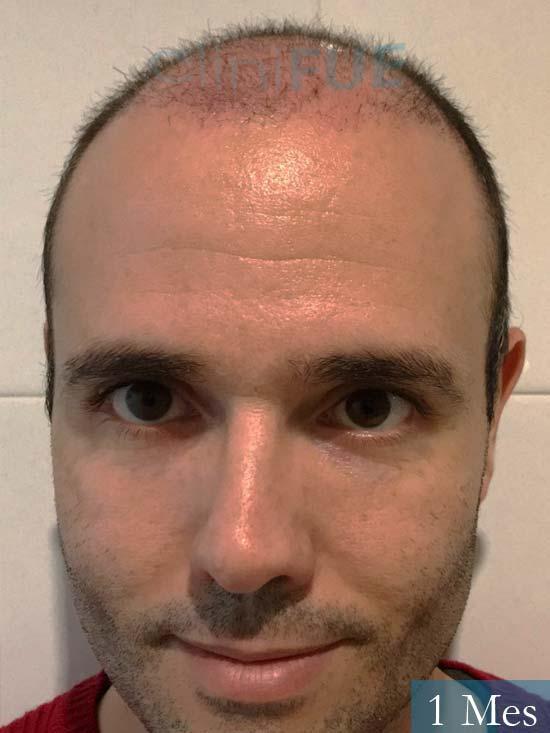 Jose 40 Barcelona injerto de pelo 1 mes