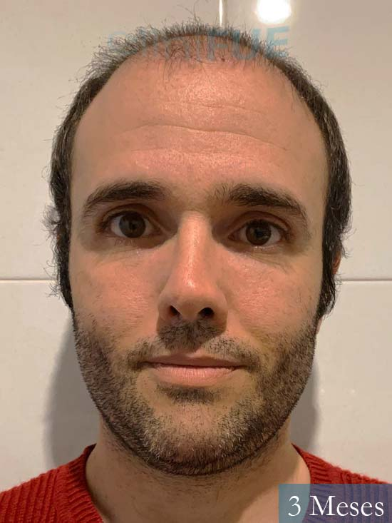Jose 40 Barcelona injerto de pelo 3 meses 1