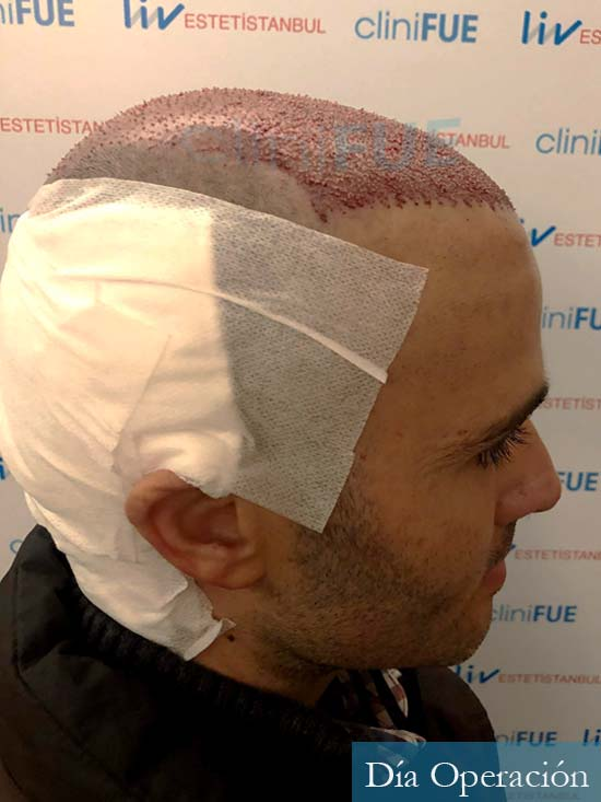 Jose 40 Barcelona injerto de pelo dia operacion 3