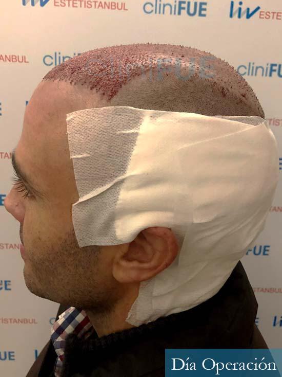 Jose 40 Barcelona injerto de pelo dia operacion 4
