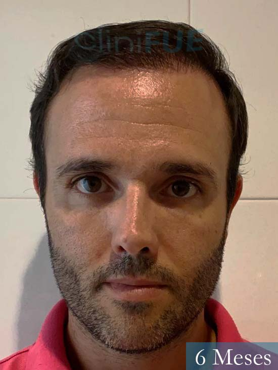 Jose 40 Barcelona injerto de pelo 6 meses