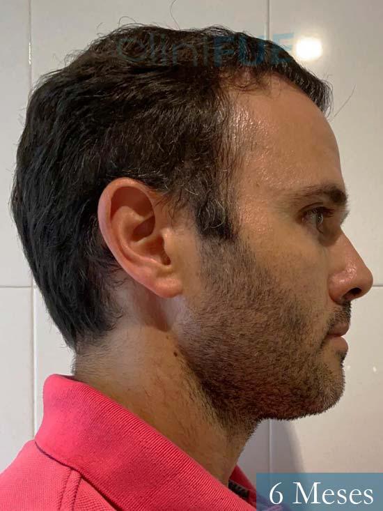 Jose 40 Barcelona injerto de pelo 6 meses 3