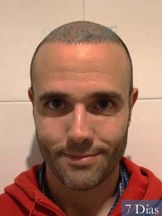 Jose 40 Barcelona injerto de pelo 7 dias