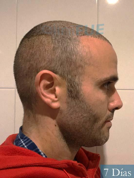 Jose 40 Barcelona injerto de pelo 7 dias 3