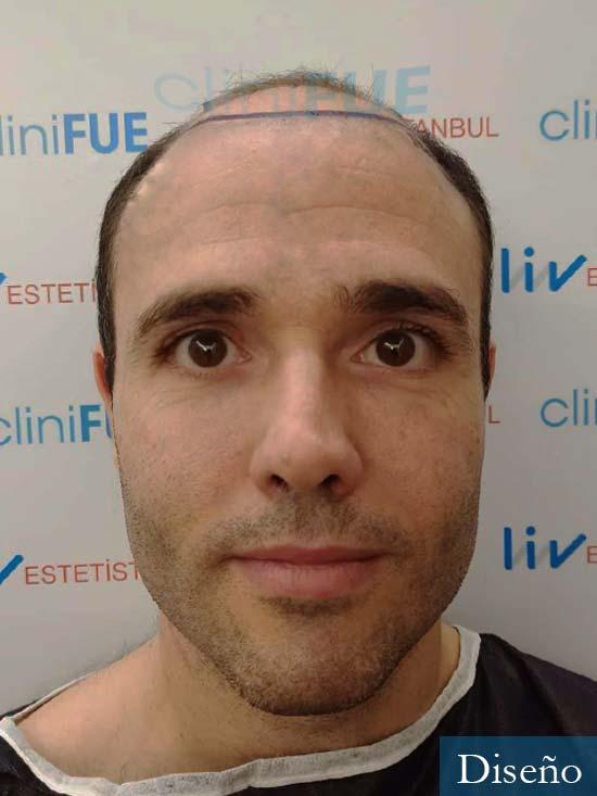 Jose 40 Barcelona injerto de pelo dia operacion diseno
