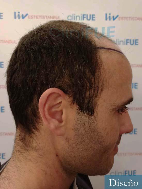 Jose 40 Barcelona injerto de pelo dia operacion diseno 3