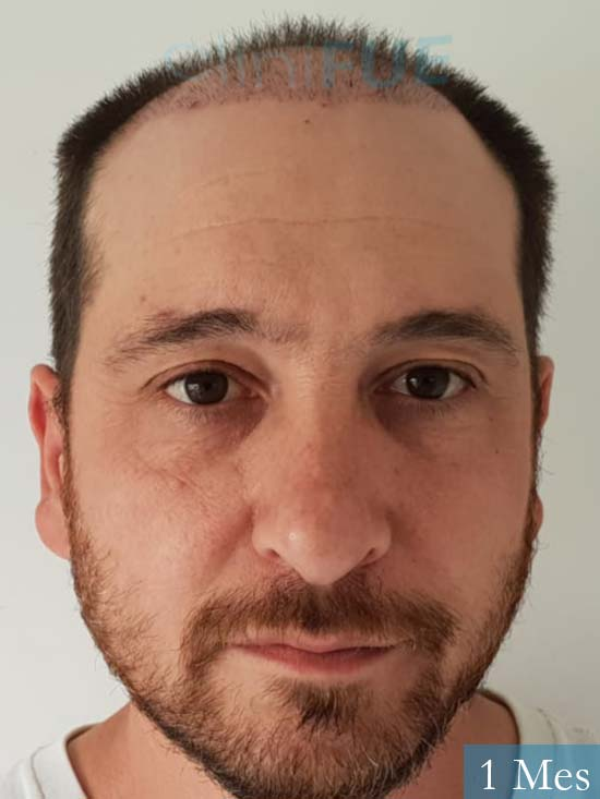 Javier 42 Barcelona trasplante capilar turquia 1 mes
