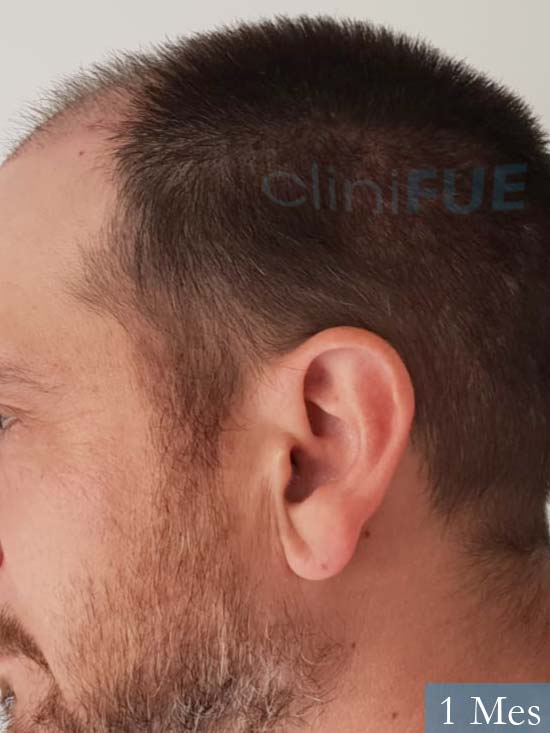 Javier 42 Barcelona trasplante capilar turquia 1 mes 5