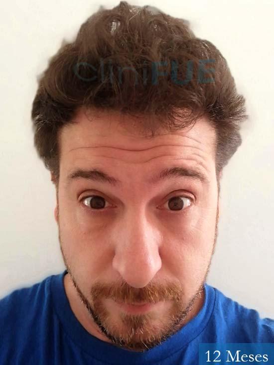 Javier 42 Barcelona trasplante capilar turquia 12 meses 2