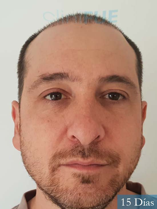 Xabier 23 PamJavier 42 Barcelona trasplante capilar turquia 15 dias