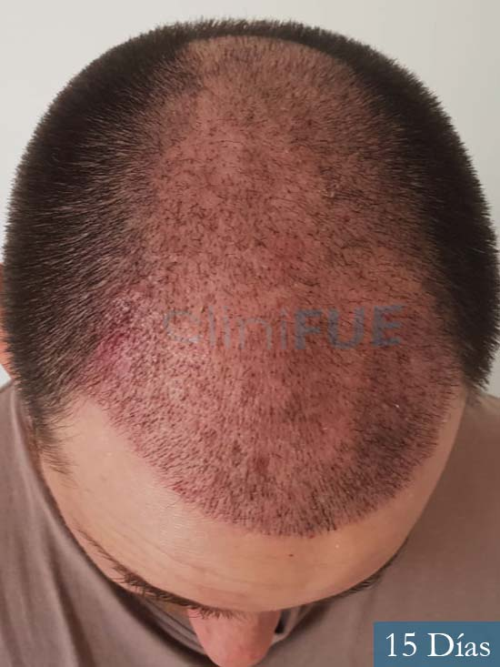 Xabier 23 PamJavier 42 Barcelona trasplante capilar turquia 15 dias 2