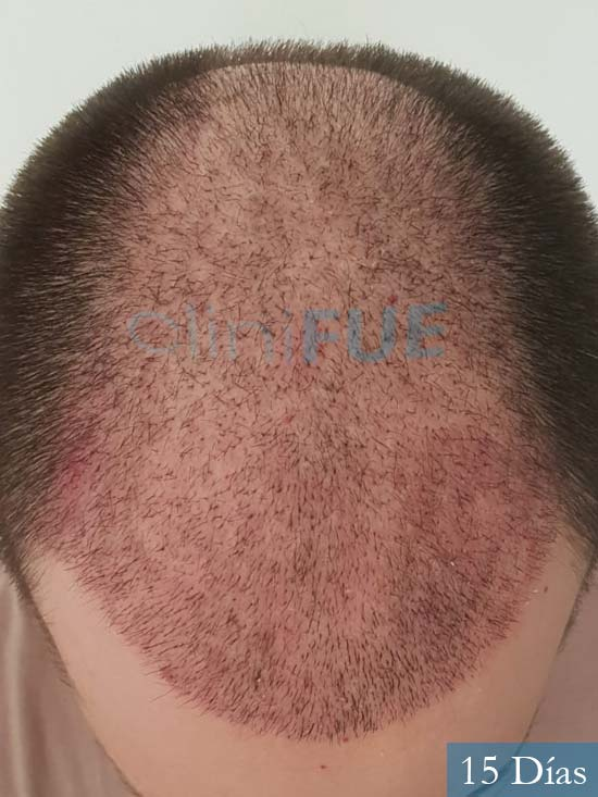 Xabier 23 PamJavier 42 Barcelona trasplante capilar turquia 15 dias 3