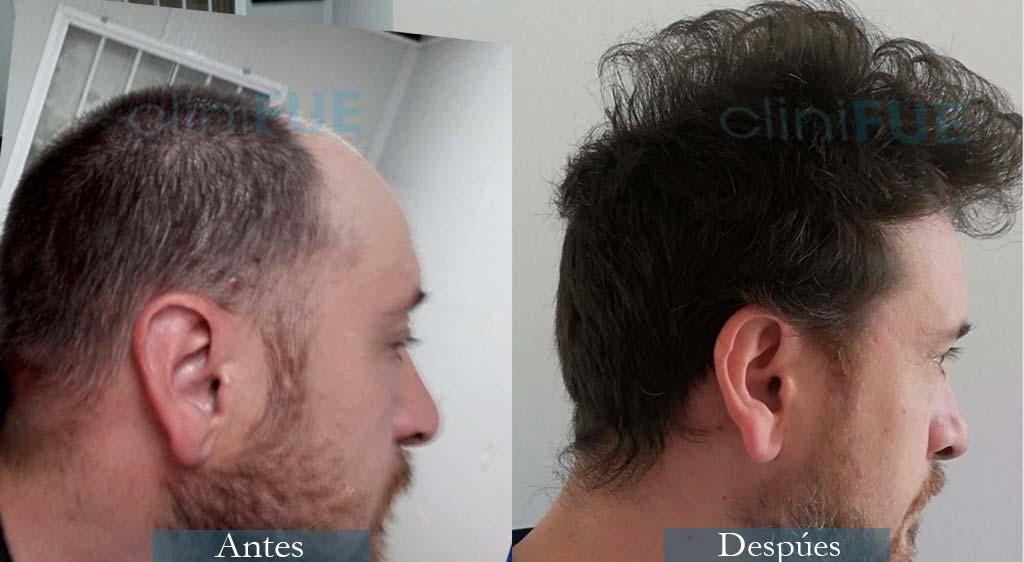 Xabier 23 Pamplona injerto de pelo 12 meses
