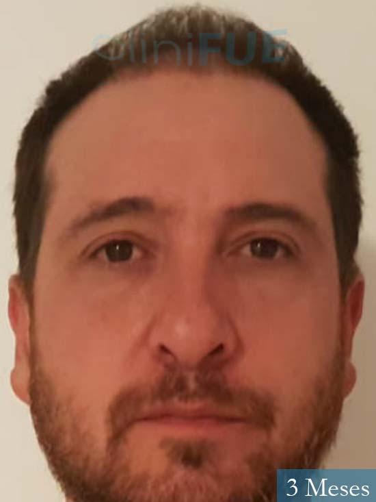 Javier 42 Barcelona trasplante capilar turquia 3 meses
